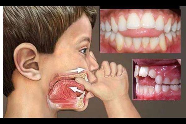 Invloed van duimen of speen op spraak en gebit